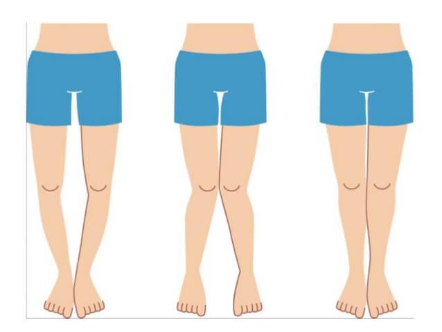 7 cách khắc phục chân cong: Chữa chân vòng kiềng tại nhà